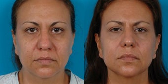 47-year-old woman treated with Rhinoplasty. before 3287804