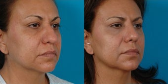 47-year-old woman treated with Rhinoplasty. after 3287804