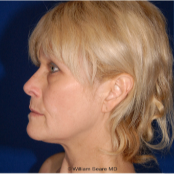 Cheek Augmentation with Natural Fat Transfer before 3104799