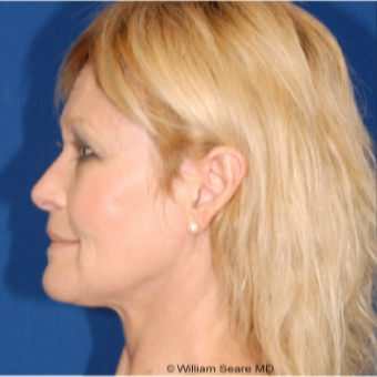Cheek Augmentation with Natural Fat Transfer after 3104799