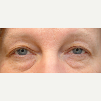 55-64 year old woman treated with Eyelid Surgery before 3528908