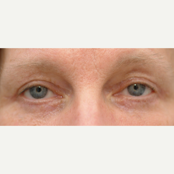55-64 year old woman treated with Eyelid Surgery after 3528908