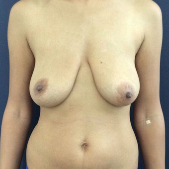 35-44 year old woman treated with Breast Lift before 3841968