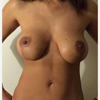 35-44 year old woman treated with Breast Lift after 3841968