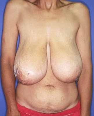 Female Right Breast Cancer Reconstruction with Left Breast Lift