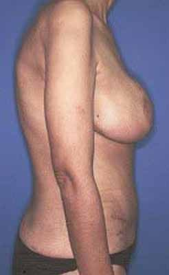 Female Right Breast Cancer Reconstruction with Left Breast Lift 984073