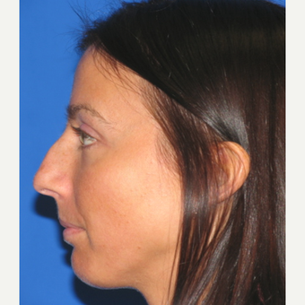 25-34 year old woman treated with Rhinoplasty before 3618891