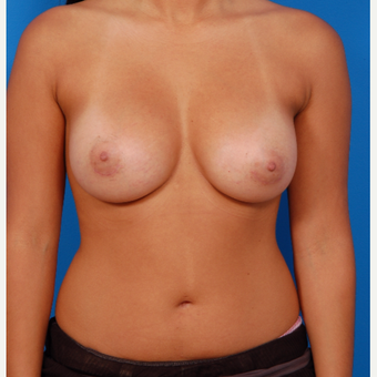 18-24 year old woman treated with Breast Augmentation after 3576770