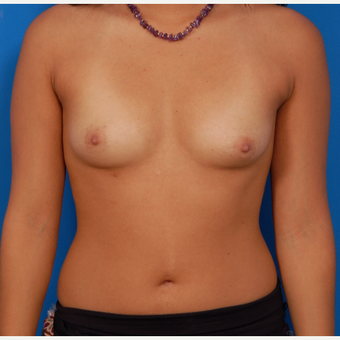 18-24 year old woman treated with Breast Augmentation before 3576770