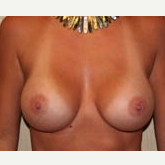 35-44 year old woman treated with Breast Implants after 3299925