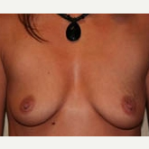35-44 year old woman treated with Breast Implants before 3299925