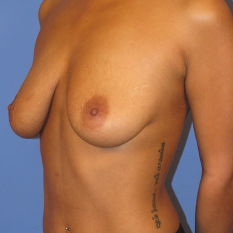 35-44 year old woman treated with Breast Lift with Implants before 2994794