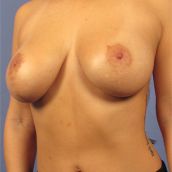 35-44 year old woman treated with Breast Lift with Implants after 2994794
