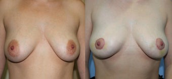 Areola reduction before 1129131