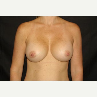 25-34 year old woman treated with Breast Implants after 2431347