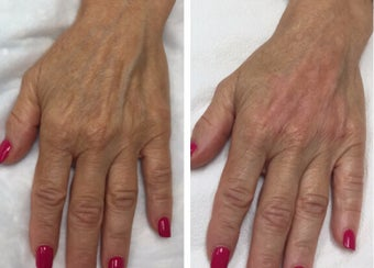 "65-74 year old woman treated with Radiesse for a ""handlift"" before 3191339"