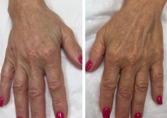 "65-74 year old woman treated with Radiesse for a ""handlift"" after 3191339"