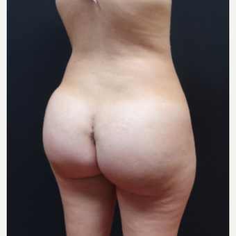 25-34 year old woman treated with Butt Augmentation after 3629853
