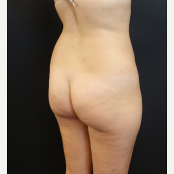 25-34 year old woman treated with Butt Augmentation before 3629853