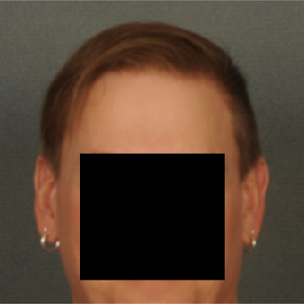 35-44 year old man treated with Hair Transplant after 3418504