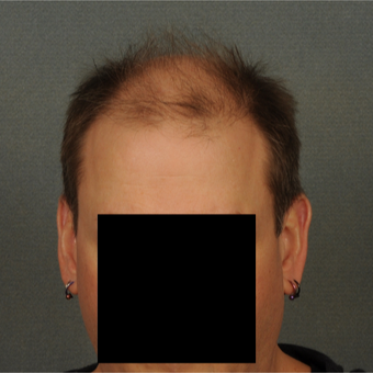 35-44 year old man treated with Hair Transplant before 3418504