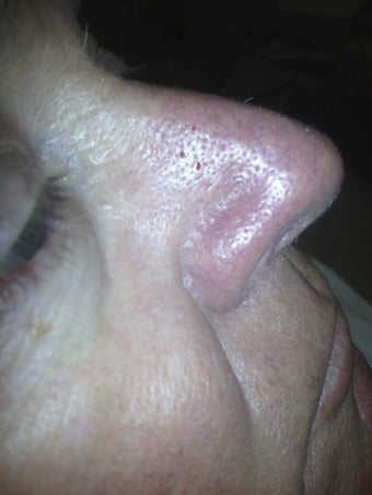 66 yo male with nasal veins after 984585
