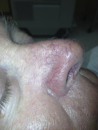 66 yo male with nasal veins