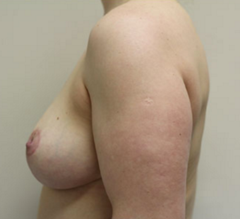 45-54 year old woman treated with Breast Lift after 3550343