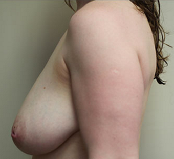 45-54 year old woman treated with Breast Lift before 3550343
