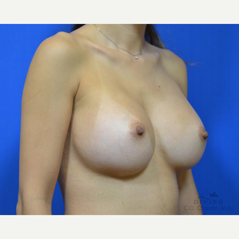 25-34 year old woman treated with Breast Augmentation after 3386390