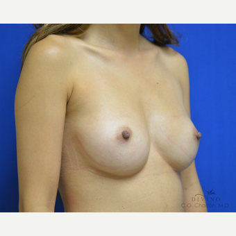 25-34 year old woman treated with Breast Augmentation before 3386390