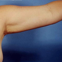 Arm Liposuction after 652127