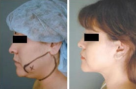 Chin Liposuction before 349910