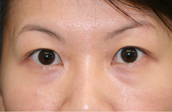 Upper blepharoplasty 507870
