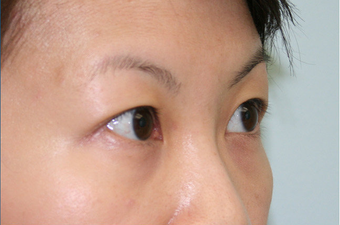 Upper blepharoplasty before 507870
