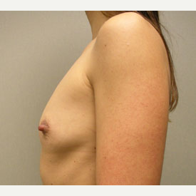 Breast Augmentation before 3681036