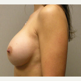 Breast Augmentation after 3681036