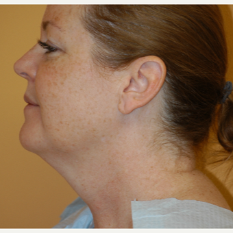 35-44 year old woman treated with Smart Lipo to the chin and neck before 3424543
