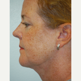 35-44 year old woman treated with Smart Lipo to the chin and neck after 3424543