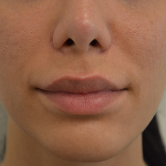 25-34 year old woman treated with Lip Lift before 2934256