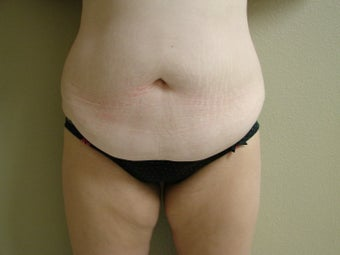 Mini Tummy Tuck (Skin Only) before 999966