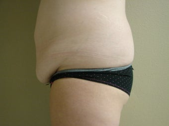 Mini Tummy Tuck (Skin Only) 999966