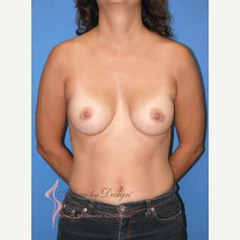 35-44 year old woman treated with Breast Implants after 3100720