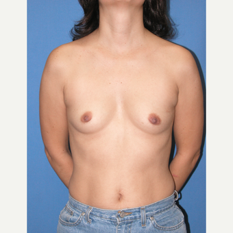 35-44 year old woman treated with Breast Implants before 3100720