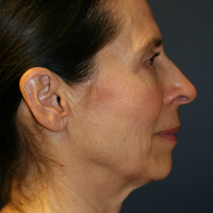 55-64 year old woman treated with Neck Lift before 3554122