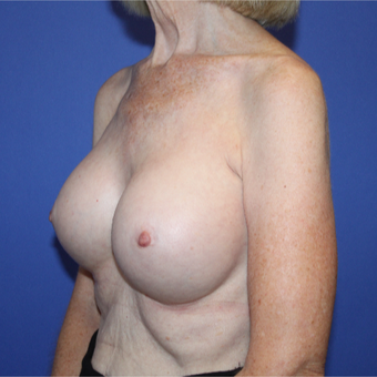 Transaxillary Subpectoral Breast Augmentation with Silicone implants after 3459272