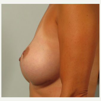 35-44 year old woman treated with Breast Augmentation after 3261177