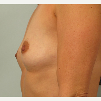 35-44 year old woman treated with Breast Augmentation before 3261177