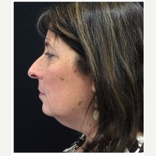 55-64 year old woman treated with Facelift before 3088075