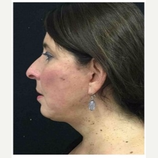55-64 year old woman treated with Facelift after 3088075